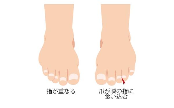 足の指が痛い